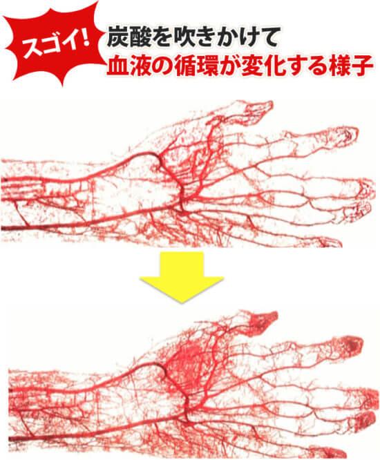 炭酸を吹きかけて 血液の循環が変化する様子